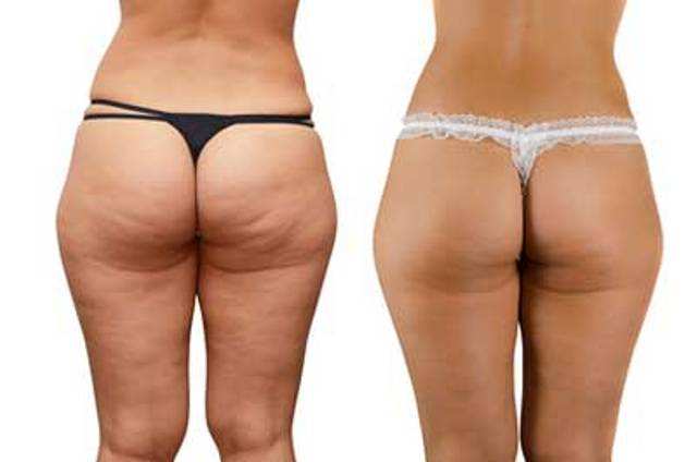 Cellulite buttocks